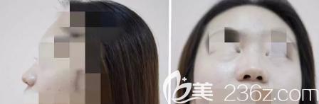 潍坊天宏医疗美容门诊部术前隆鼻侧面和正面照片