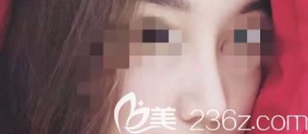 潍坊奎文天宏医疗美容门诊部张明欣术后照片1