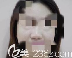 潍坊奎文天宏医疗美容门诊部张明欣术前照片1