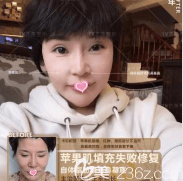 北京艺美王东医生面部脂肪填充失败修复案例