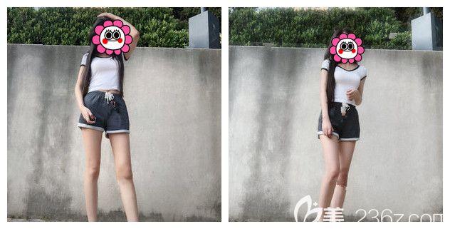 参考过南京艺星吸脂价格表以及案例效果,我也去做了大腿吸脂分享真实经历术后3个月腿围小了6cm
