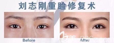 刘志刚院长双眼皮修复真人前后对比