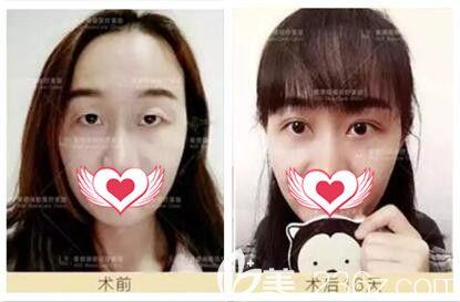 王香平医生双眼皮真人案例对比
