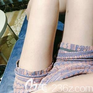 到郑州菲林做了个水动力大腿吸脂 事后还专程到网上调查了项中勇医生的资料
