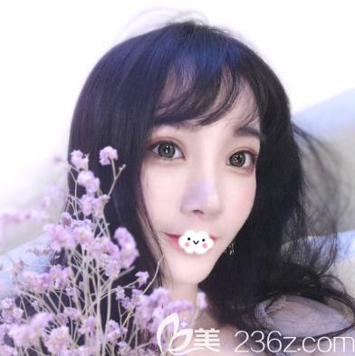 进来感受一下我找深圳润泽瑞尼丝刘庚医生做完双眼皮隆鼻后的惊人变化