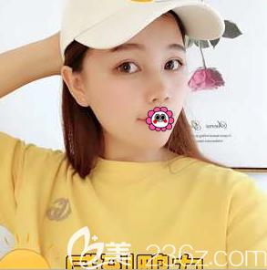 北京做韩式双眼皮要多少钱?我花两万余在北京禾美嘉做韩式双眼皮恢复过程图公布