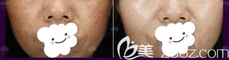 华美激光祛斑术后45天斑点消失