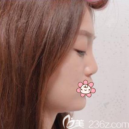 广州荔医整形美容门诊部李增产术前照片1