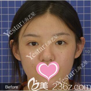 上海艺星医疗美容医院唐毅术前照片1