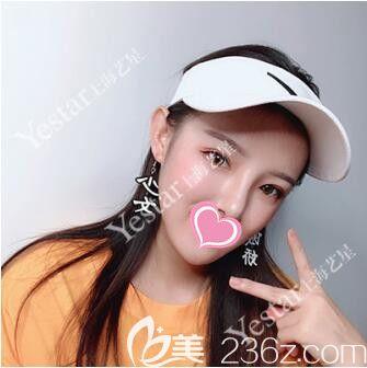 上海艺星唐毅做眼综合+鼻中隔+耳软骨+膨体隆鼻真人案例术后30天