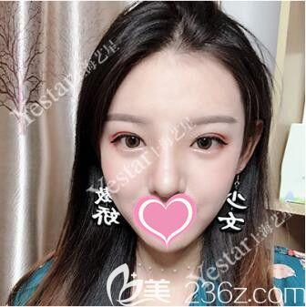 上海艺星医疗美容医院唐毅术后照片1