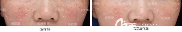 成都悦好杨翠霞改善肤色治疗效果对比