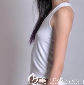 四川悦好医学美容医院王祥术前照片1