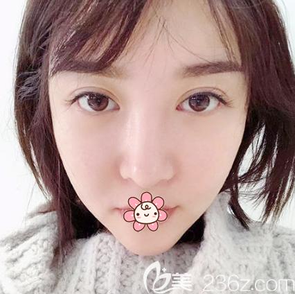 韩国菲斯莱茵李真秀双颚手术一个月恢复效果图