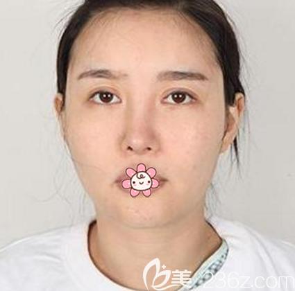 韩国face-line整形医院李真秀术前照片1