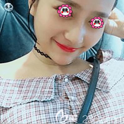 我在北京紫洁医美做鼻综合第15天效果