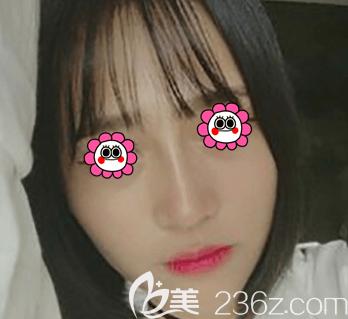 紫洁俪方(北京)医疗美容诊所刘文峰术后照片1