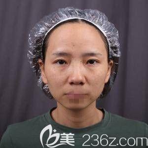 郑州华领医疗美容医院屈琳丽 术前照片1