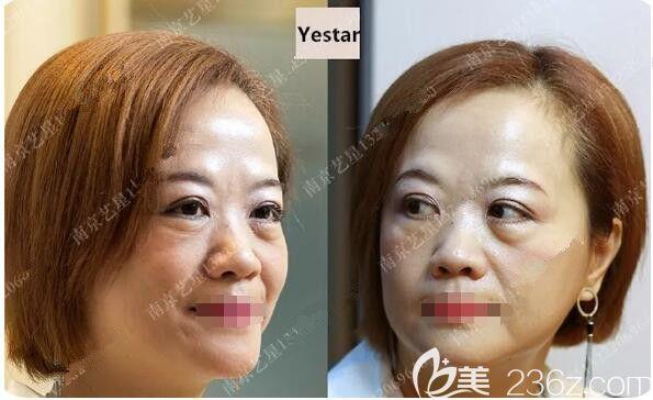 南京艺星医疗美容门诊部汪树杰术前照片1
