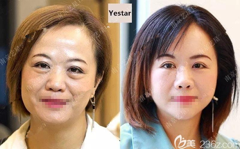 眼袋厚重、八字纹明显的她在南京艺星做了脂肪重置填充,不够的脂肪从大腿内侧吸脂术后视觉上年轻五岁有余