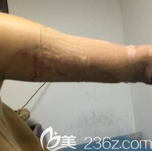 水动力手臂吸脂术后恢复照