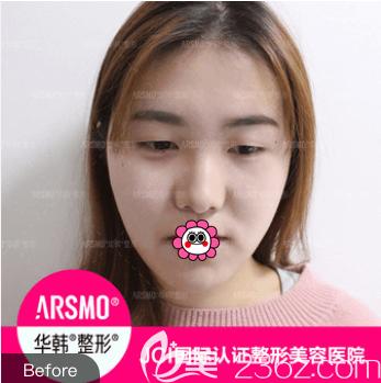 北京华韩医疗美容医院谢立宁术前照片1