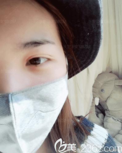 谢立宁医生给我做韩式定点双眼皮第10天效果