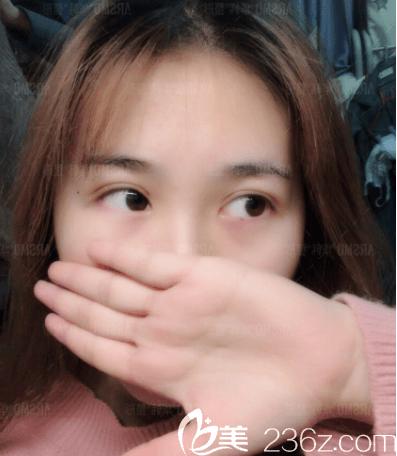 北京华韩韩式定点双眼皮案例