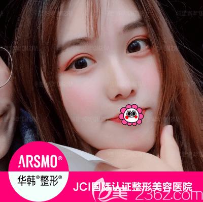 我在北京华韩找谢立宁做这韩式定点双眼皮效果好友评价说灵动自然