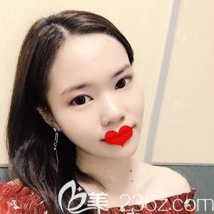 邯郸雅丽医疗美容门诊部王志国术后照片1