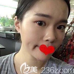在邯郸雅丽注射瘦脸针术后一周脸型有变化