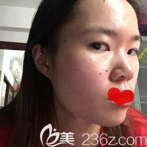 邯郸雅丽医疗美容门诊部王志国术前照片1