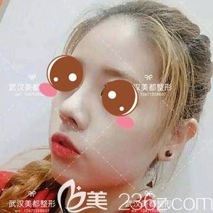 蒜头鼻想要比美怎么办?看我到武汉美都找孟晓宇做自体软骨鼻综合整形后美丽侧颜新体验