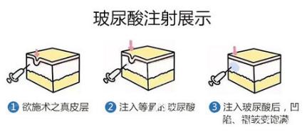 玻尿酸注射流程
