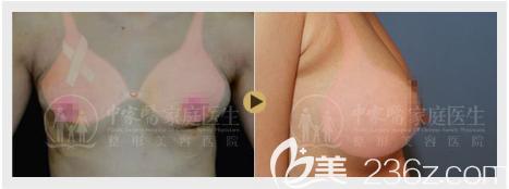 黄广香做的乳房奥美定取出+假体隆胸案例