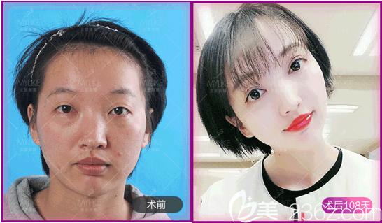 北京美莱叶宇医生眼综合案例