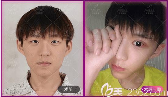 北京美莱谭章梅医生韩式双眼皮和开眼角案例