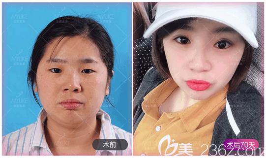北京美莱李燕切开双眼皮案例