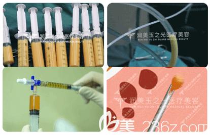 王明利医生吸脂隆胸手术过程示意图