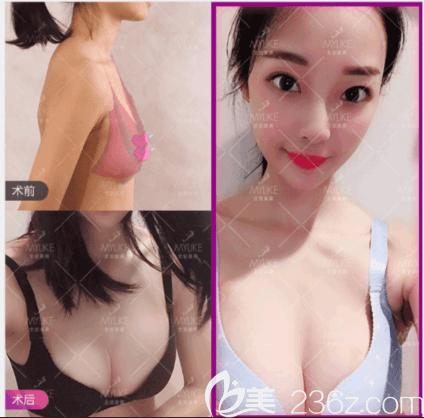 北京美莱王志军吸脂丰胸案例