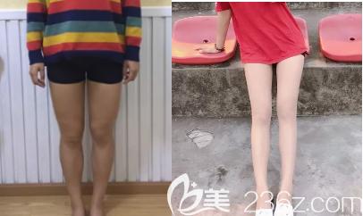 吸脂瘦大腿的术前术后照片对比