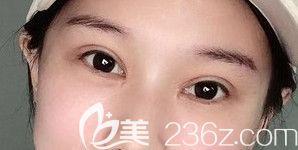 在郑州天后找郭晓光医生做眼综合整形15天后 给大家分享一下术后快速恢复的小妙招