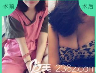 潍坊天宏假体隆胸案例
