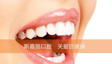 斯嘉丽极致牙齿冷光美白,牙齿美白,笑容才是女神般的美丽!