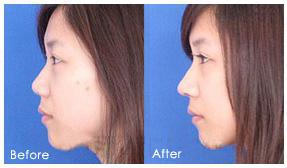 博美硅胶假体隆鼻 拥有符合自身气质的心仪美鼻