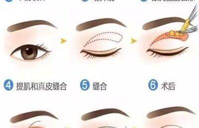 【全切双眼皮】韩式全切双眼皮,让你拥有完美电眼