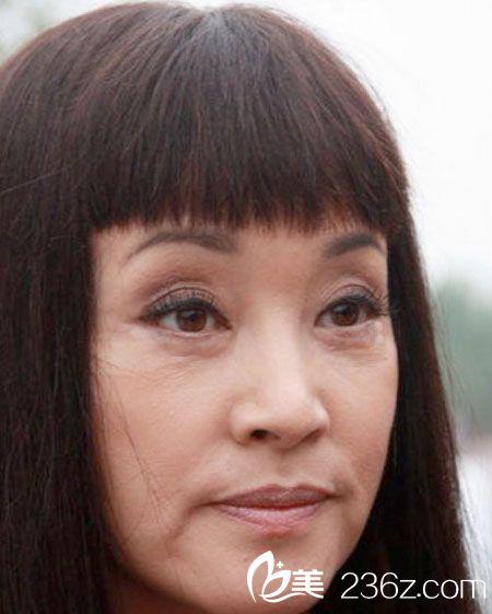 刘晓庆整形前后对比图片