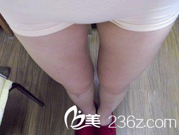 大腿内结构示意图