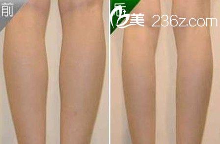 瘦小腿前后对比