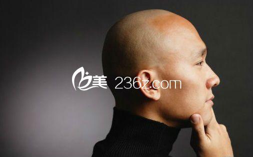 男人为什么会比较容易出现秃顶